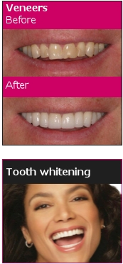 Tooth Whitening by One Complete Dental